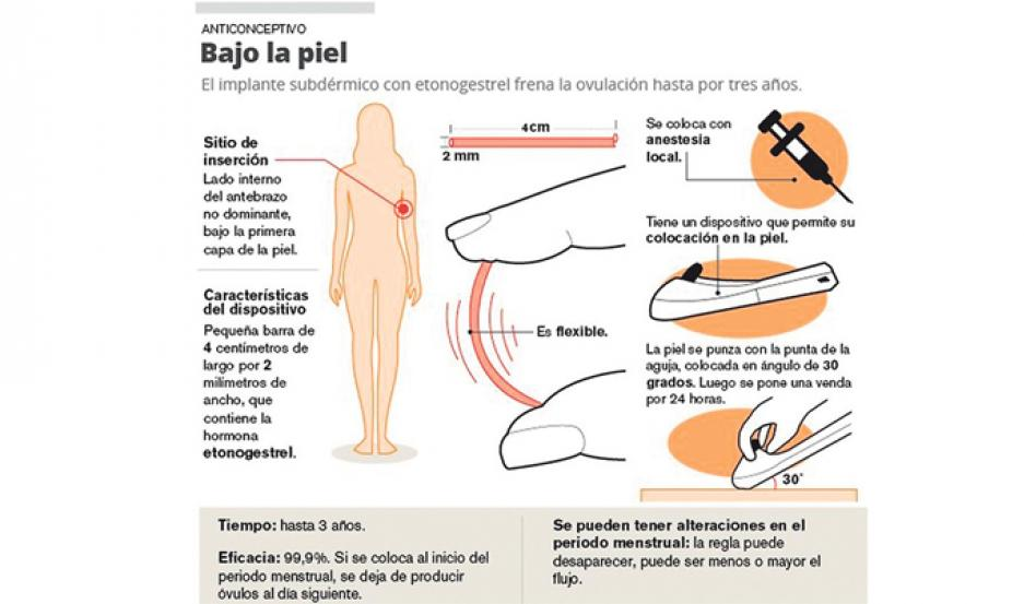 como se coloca el implante anticonceptivo
