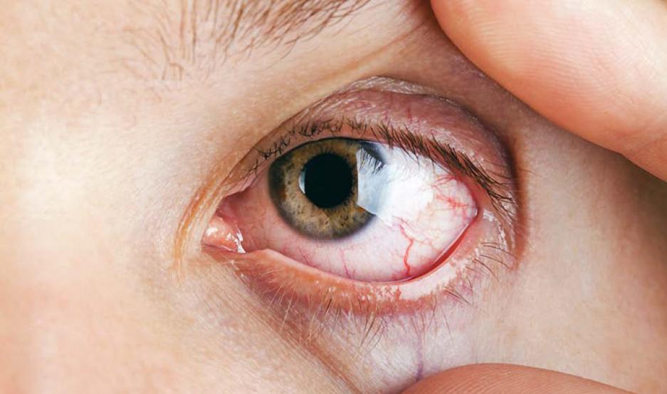 Me salio una mancha de sangre dentro del ojo