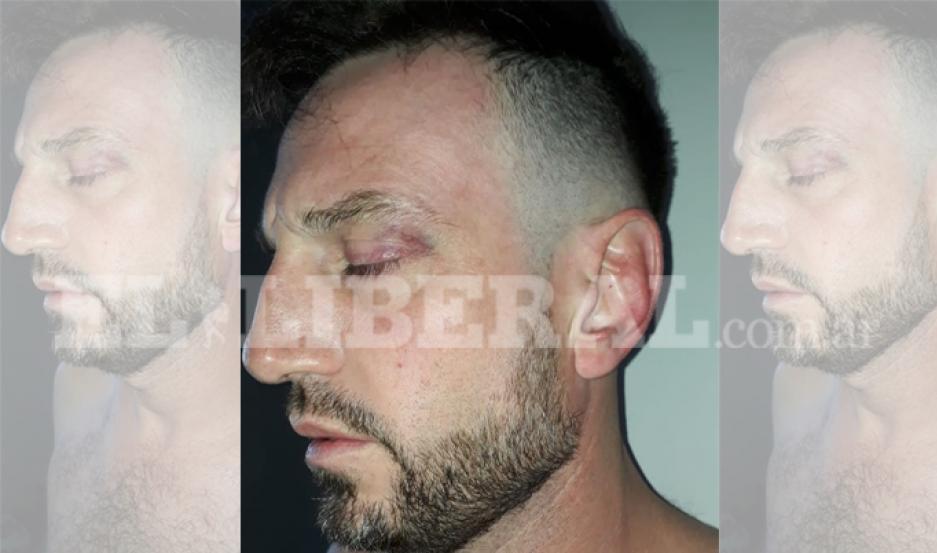 Comerciante que baleó a joven en finca se entregó a la Fiscalía