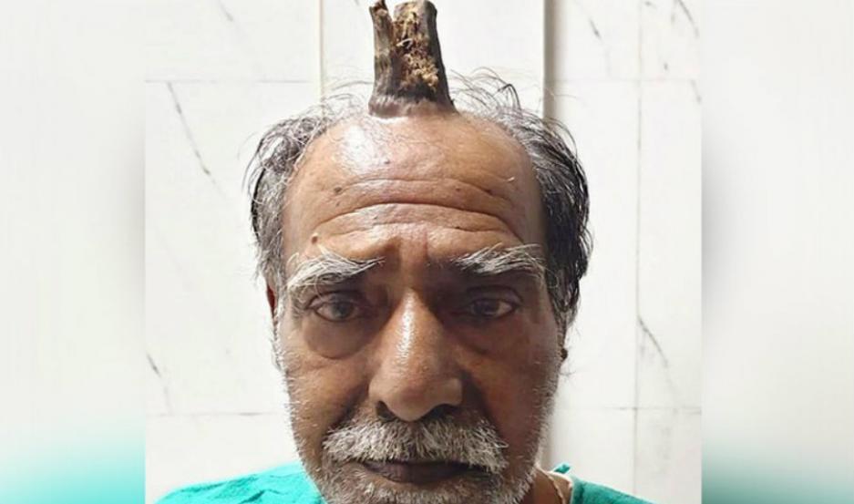 Shyam Lal Yadav, con el cuerno en la cabeza.