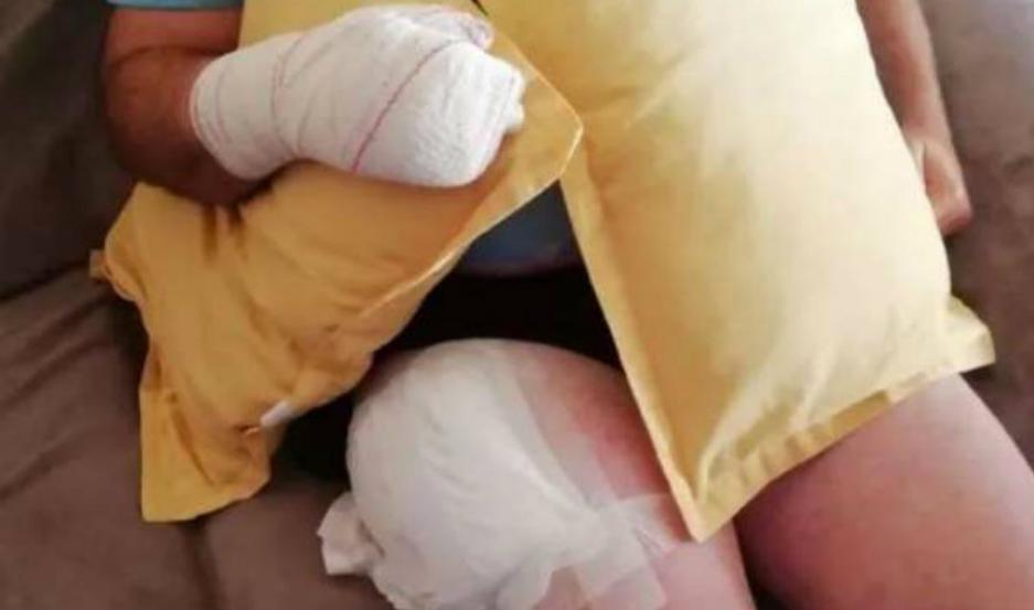 El hombre sufrió heridas en la pierna y en la mano.