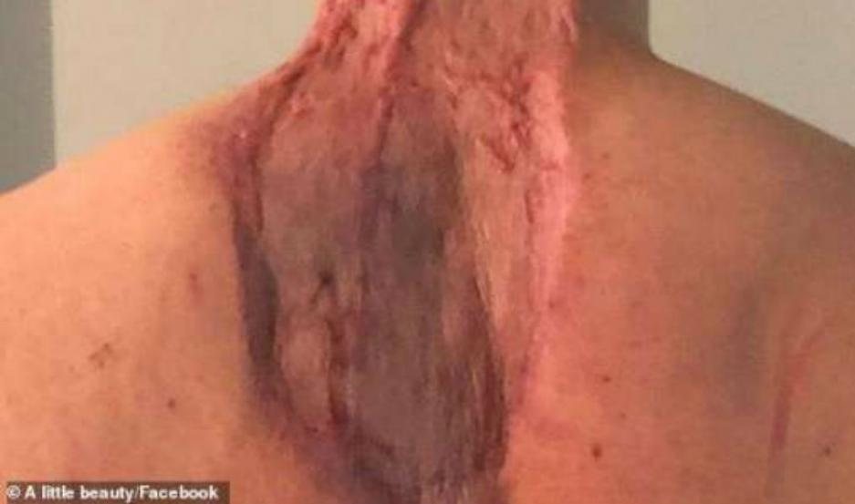 Ryan Glossop, terminó perdiendo gran parte de su cuello y espalda.