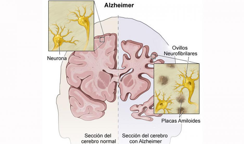Factores genéticos y ambientales llevarían a la interrupción entre neuronas y la muerte celular.